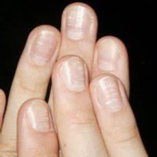 Кандин от грибка ногтей