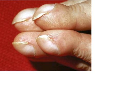 clubbing finger medical pictures info health