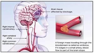 Ischemic Stroke Illustration  American Stroke Association