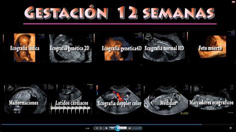Cytotec For 2 Months Pregnant 4 Semanas De Gestacion Newhairstylesformen2014 Com