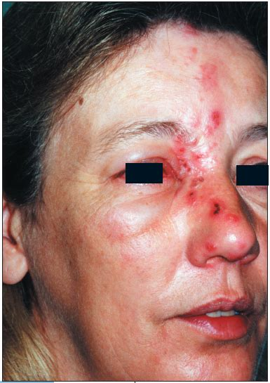 photoclinic herpes zoster ophthalmicus consultant