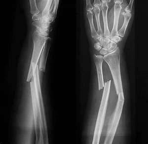 Royalty Free Broken Bone Xray Pictures, Images and Stock ...