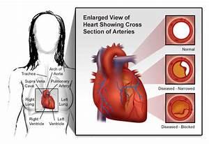 Congestive Heart Failure: The Essence of Heart Failure ...