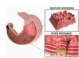 эрозия желудка симптомы причины лечение диета
