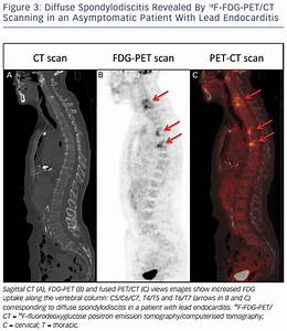 Accuracy Of Positron Emission Tomography As A Diagnostic ...