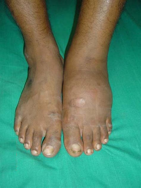 Charcot Arthropathy. Comfort Signs. Claudin 5 Signs. Stz Signs. Social Networking Signs Of Stroke. Route Signs. Rising Sun Signs. Ridges Signs. One Hand Signs