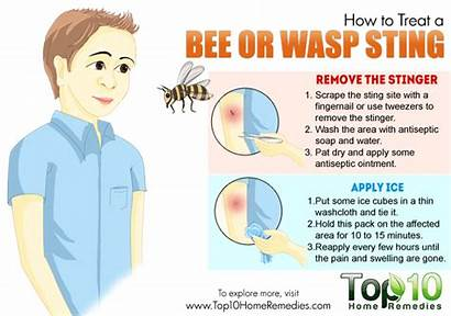 Sting Bee Wasp Stings Treat Aid Remedies