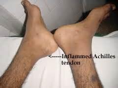Reactive arthritis. Causes, symptoms, treatment Reactive arthritis Reactive Arthritis