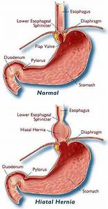 Hiatal Hernia And Vagus Nerve Connections