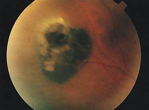 Acquired Tumors Arising From Congenital Hypertrophy Of The Retinal Pigment Epithelium
