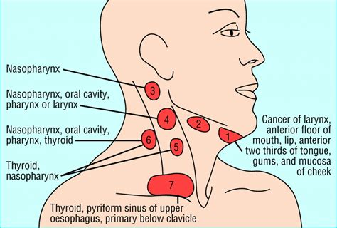 management  lateral neck masses  adults  bmj
