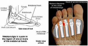 Metatarsalgia. Foot problems as the result of ...