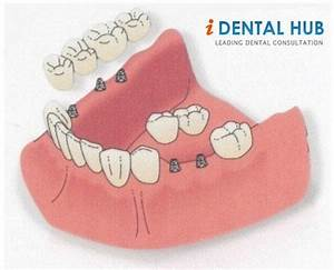 Dental  Implants  Aftercare Instructions