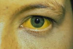 hepatitis b is a serious disease caused by the hepatitis b virus hbv  Hepatitis Infections