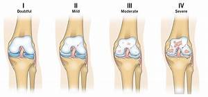 Guide To Severe Knee Arthritis  Osteoarthritis