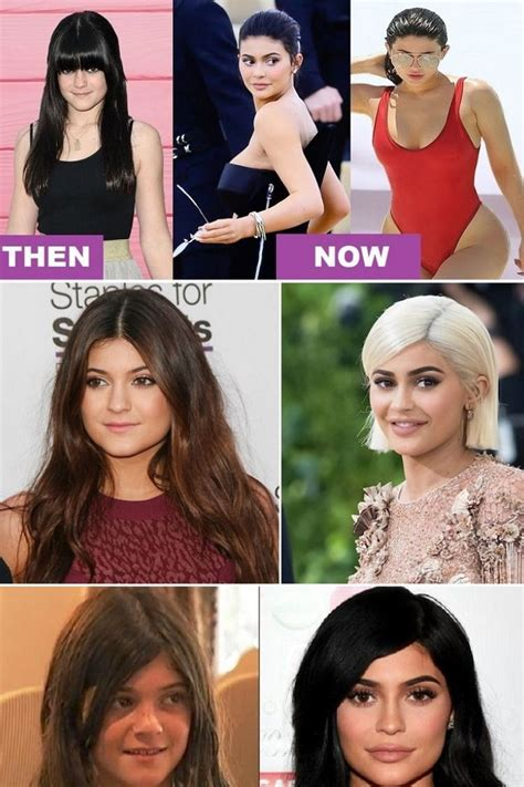 Kendall Jenner Now And Then