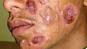 Cystic Acne  Acne Coverage Cystic Acne On Face