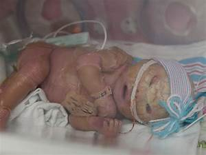 Meet Brenna  A Baby With Harlequin Ichthyosis