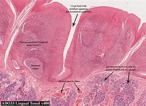 Palatine Tonsil Histology