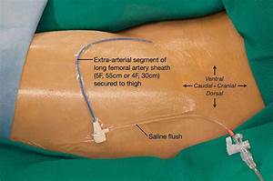 Picture Of A Patient U0026 39 S Left Groin Area Showing The Hub Of