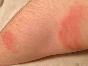 Shampooing pour psoriasis du cuir chevelu, résolu - Santé