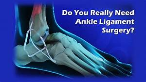 Ankle Ligament Surgery