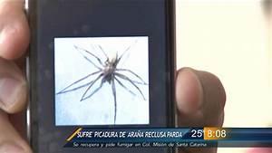 Las Noticias - Sufre Picadura De Ara U00f1a Reclusa Parda