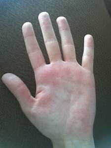red spots on palms of hand - pictures, photos
