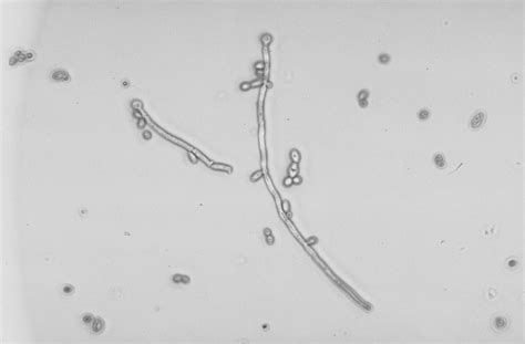 Candida Non Albicans In Urine Yeast Infection And