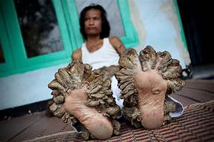 "Dede Koswara Photos Photos - Indonesian ""Tree Man ..."