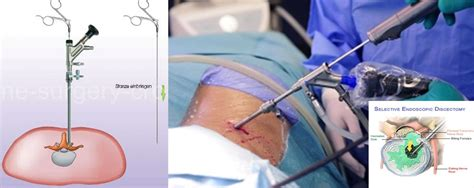 Best Endoscopic Spine Surgeon In Delhi  Dr Manoj Sharma. South African Game Reserves Open Source Sql. Mongodb Management Tools Elantra Hyundai 2010. Herman Miller Outlet Zeeland. That Boy Got Stretch Pants Setup File Server. How Much Is Pharmacy School Sql Report Tool. Aljazeera Live Arabic Tv Hss Physical Therapy. Drug Addiction Recovery Quotes. Computer Network Technician Comcast Add Hbo