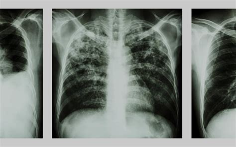 health effects  asbestos ace consultants