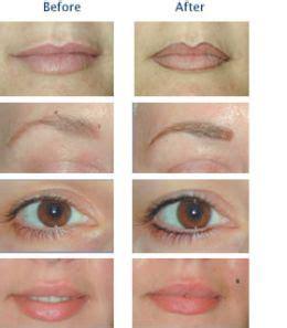 tattoos permanent makeup  symptoms treatment