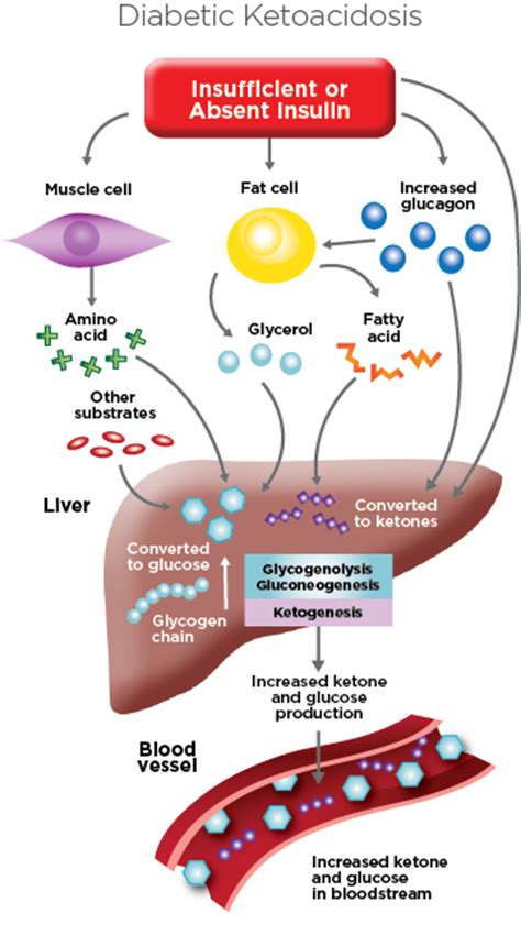 bhb test  diabetic ketoacidosis dka ekf diagnostics