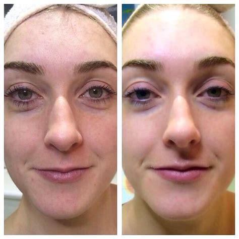 Led Light Therapy For Skin Rejuvenation Acne Rosacea