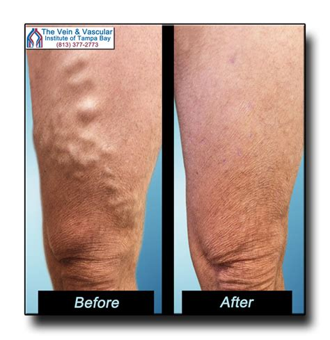 Tampa Varicose Vein Removal Before And After Pictures. Drug Treatment Seattle Proxy Surf Anonymously. Window Coverings Hardware Deep Vein Thrombus. Chattanooga State Middle College. Windows Server 2011 Add Ins Gmo Mutual Funds. Santa Barbara Boarding School. Best Engineering Firms To Work For. Universities In Virgina Music Schools College. College Application Due Dates
