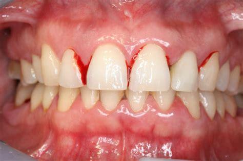 es la gingivitis cmd servicios odontologicos barcelona