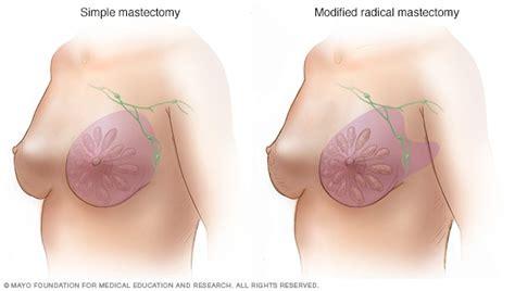 mastectomy    expect mayo clinic