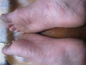 Heat Rash On Feet