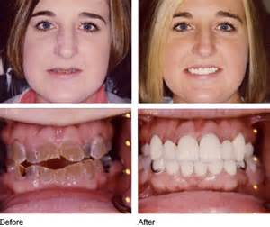 Dentures Before and After Teeth