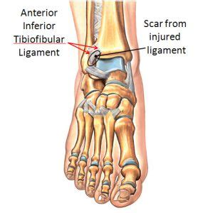 Anterolateral Ankle Impingement - FootEducation