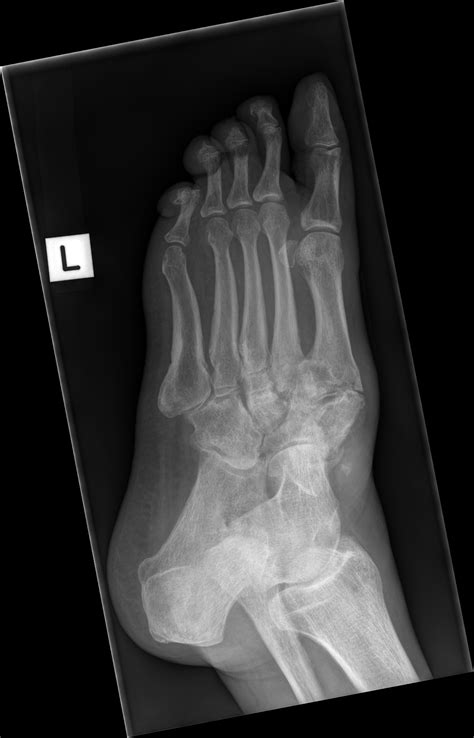 Bilateral Charcot joints with Lisfranc injuries | Image