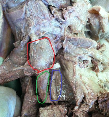 trachea larynx carotid arteries thyroid gland