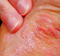 Dyshidrotic Eczema Home Remedies by Dyshidrotic Dermatitis Treatment Vinegar