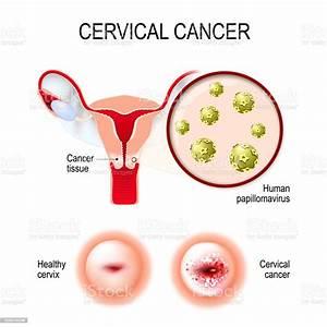 Cervical Cancer Uterus Cervix And Closeup Of The Human