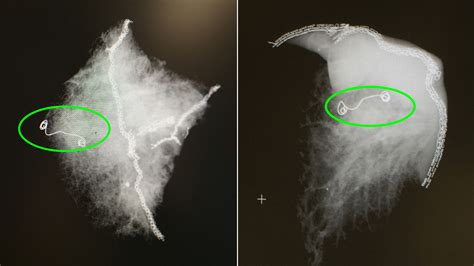 lung microcoil cancer stage early cleveland clinic procedure promise innovative shows ray newsroom xray patient samples courtesy