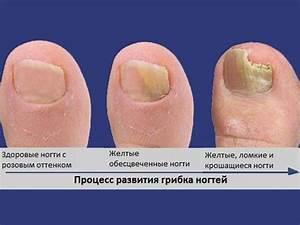Грибок под нарощенными ногтей лечение