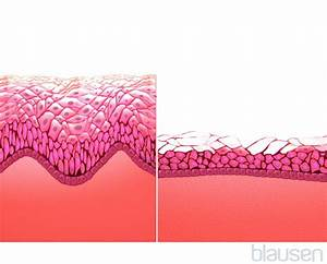 Vaginal Discharge - Women's Health Issues - Merck Manuals ...