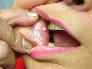 Pictures Of Fibroma Of The Lip And Buccal Mucosa