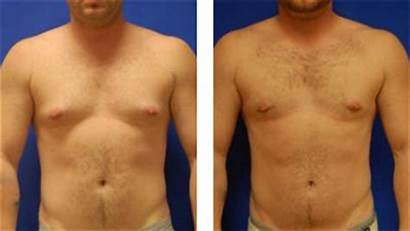 Breast Reduction Male Mobile Before Gynecomastia Plastic